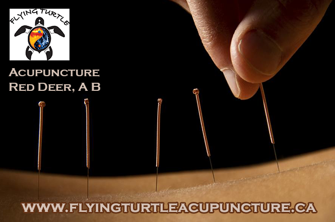 Acupuncture Services for Arthritis Red Deer, AB